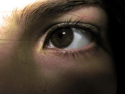 поражение глазных нервов
