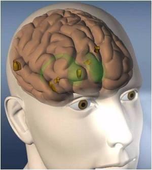 посттравматическое головокружение