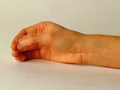 Болезнь Паркинсона тремор