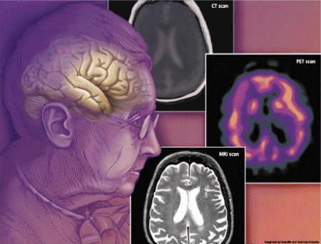 дисциркуляторная энцефалопатия деменция