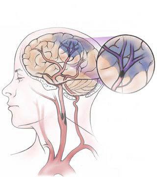 дисциркуляторная энцефалопатия венозная