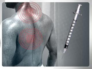 Лечебные блокады боли в шее