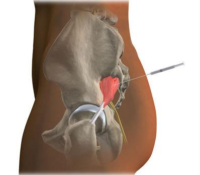 Лечебные блокады боли грушевидной мышцы