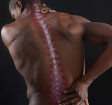 Лечебные блокады остеохондроз
