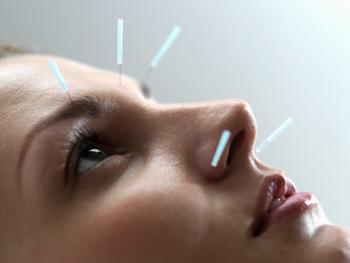 Невралгия тройничного нерва рефлексотерапия