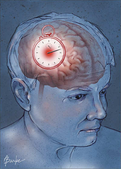 предвестники инсульта