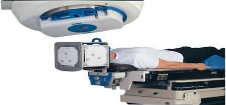 радиохирургия при лечении невралгии тройничного нерва