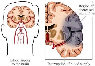 развитие ишемического инсульта