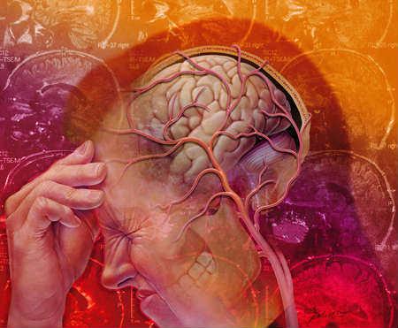 развитие мигрени