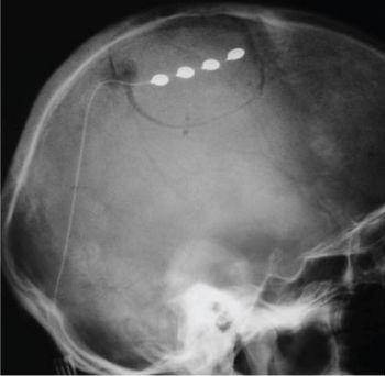 стимуляция коры при лечении невралгии тройничного нерва