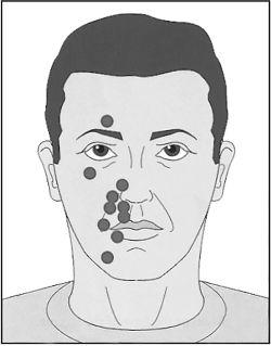 активные точки неврит лицевого нерва