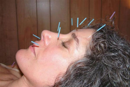 акупунктура лечение мигрени