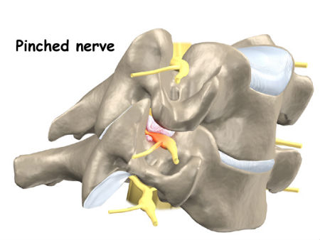корешки спинного мозга