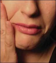 асимметрия лица неврит лицевого нерва