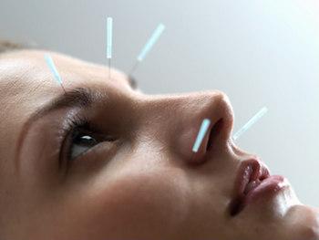 иглорефлексотерапия  неврит лицевого нерва