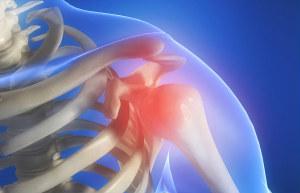 шейно-плечевой радикулит