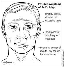 симптомы неврит лицевого нерва